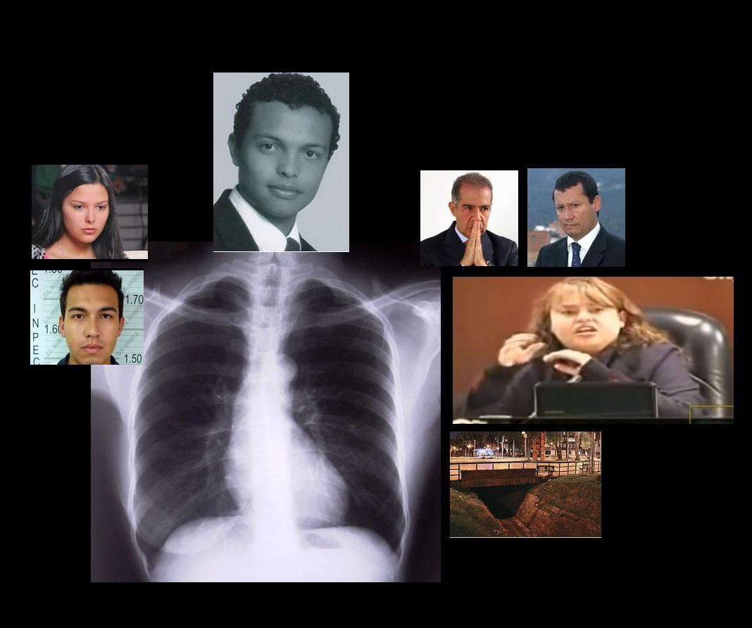 El Caso Colmenares y una radiografía de la justicia colombiana